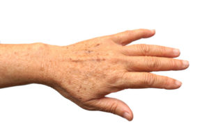 aging-hands-age-spots