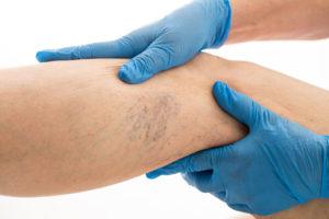 capillaries-veins