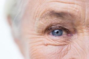 mole-aging-skin-dry-skin