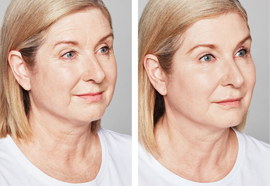 Skin Rejuvenation and Resurfacing