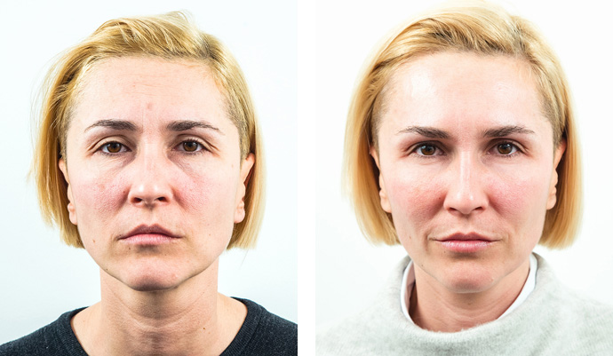 Non) surgical face lift treatment | Face lifting - Milo clinic london