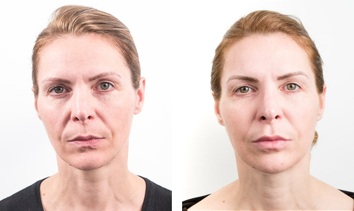 Non) surgical face lift treatment | Face lifting - Milo