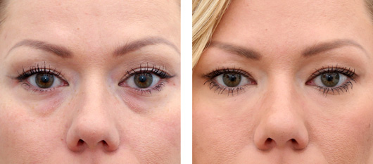 Tear trough filler | Non surgical eye bag removal Harley street