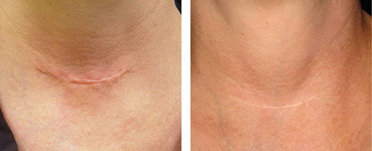 Laser Genesis Scar Treatments