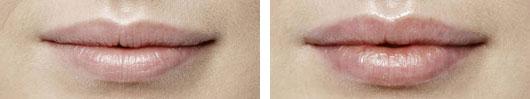Lip Shaping and Augmentation