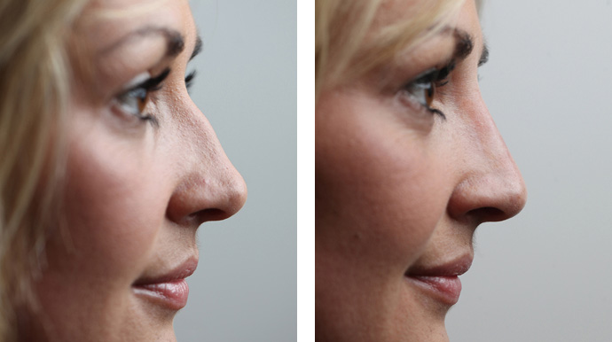 Harley street Non-Surgical Nose Job | Nose fillers - Milo Clinic