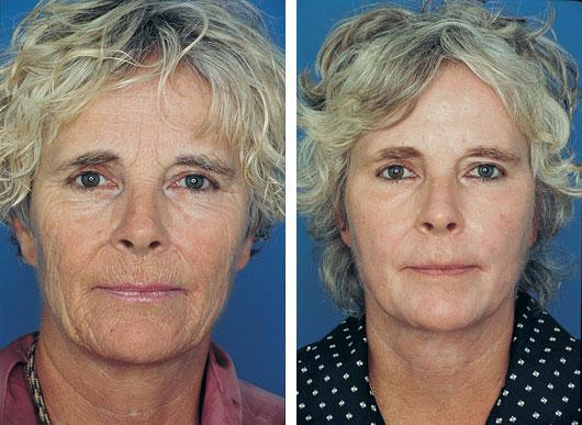 obagi skin treatment