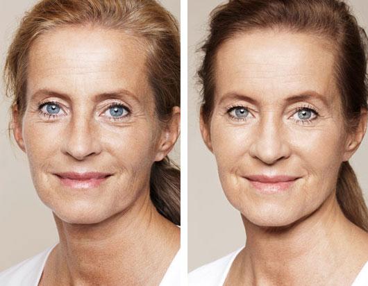 Juvederm Volite skin rejuvenation