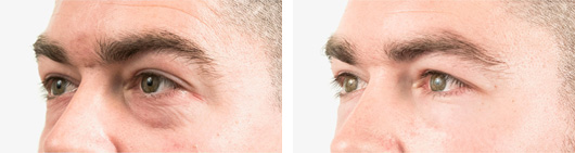 Tear trough filler | Non surgical eye bag removal Harley street